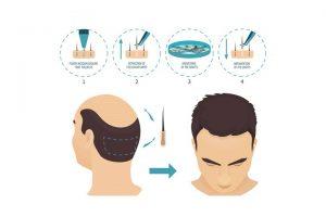 الأمور المتعلقة بمرحلة ما بعد إجراء زراعة الشعر في تركيا