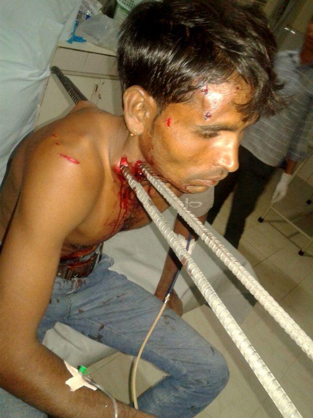 فيديو | هندي ينجوا من الموت بعد اختراق قضيبان حديد  جسده